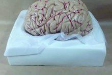 mô hình não người tiến minh